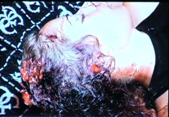 head wound