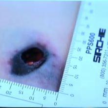 hip wound